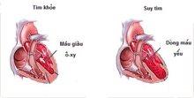 Chế độ ăn uống, sinh hoạt dành cho Bệnh nhân suy tim